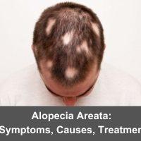 Alopecia Areata: Symptoms, Causes, Treatment