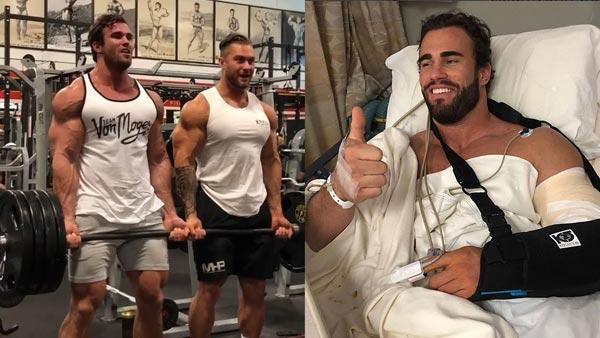Calum Von Left Bicep Tear During A Gym Stunt