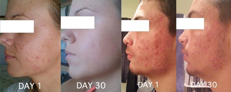 CleaRx Results