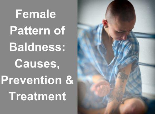 Female Pattern of Baldness