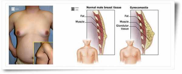 Gynecomastia Growth