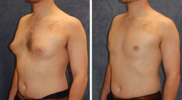 Get Rid Of Gyno With Surgery