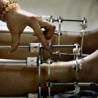 Leg Lengthening Surgery: Is It Worth It?