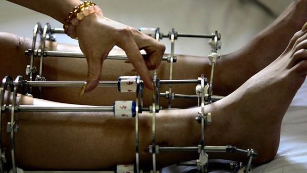 Leg Lengthening Surgery