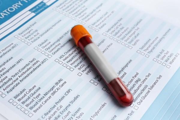 Porphyria Diagnosis - Blood And DNA Test
