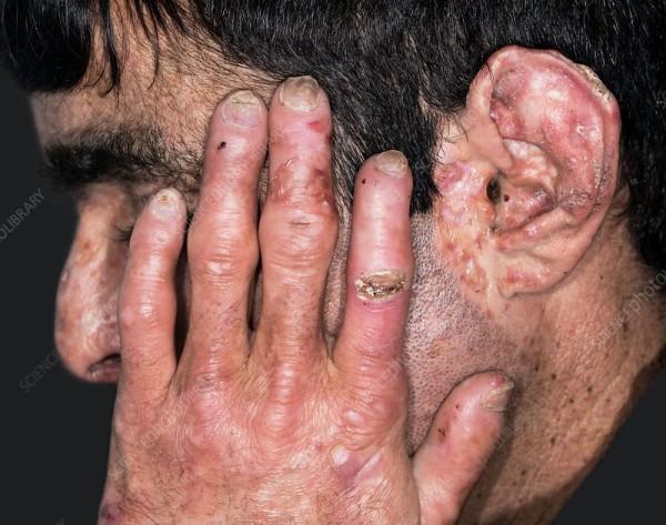 Porphyria Treatment