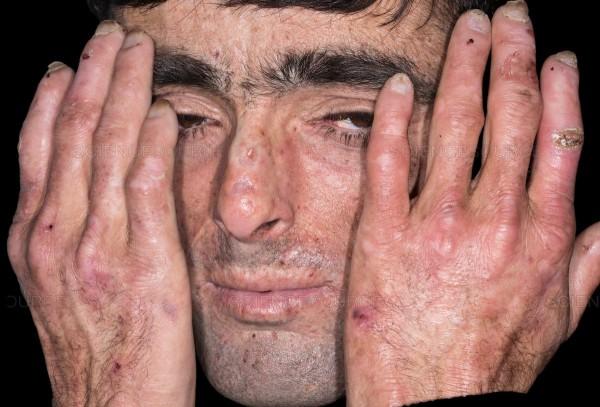 Porphyria Symptoms - Skin Blisters