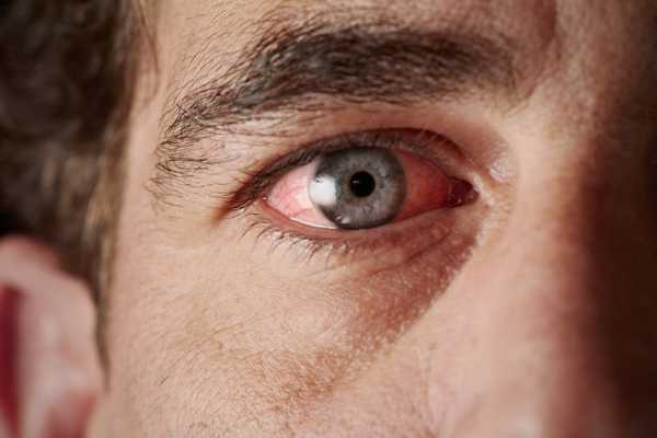Symptoms Of Vitamin B12 Deficiency Include Damaged Retina