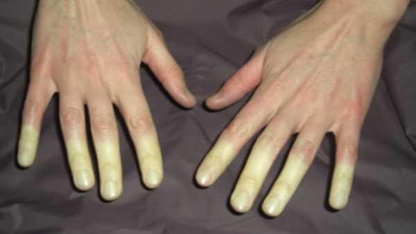 Symptoms Of Vitamin B12 Deficiency Include Pale Complexion