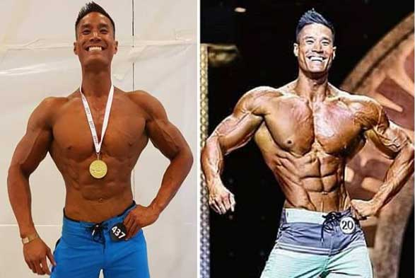 Viet Doan 20 Month Before And After Picture