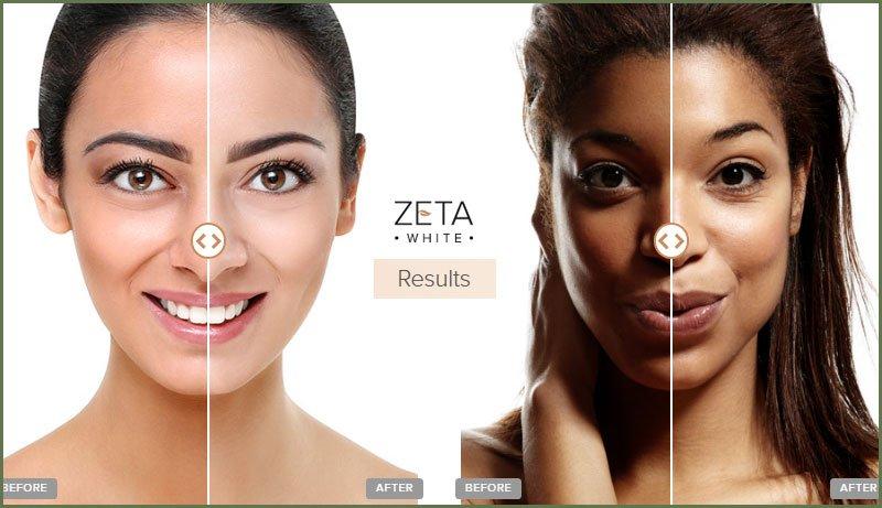 Zeta White Results