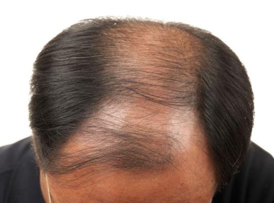 diabetes and hair loss