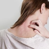 Top 12 Natural Remedies For Eczema