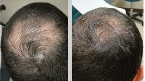folexin-before-after