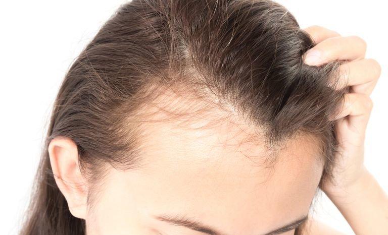 hairloss in diabetes