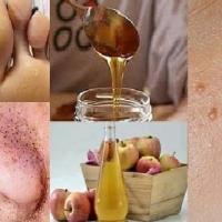 Ways To Remove Skin Tags, Moles And Warts At Home