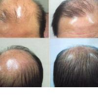 5 Best Hair Growth Supplements For Women & Men In 2021