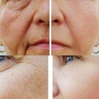 Wrinkles: Causes and Home Remedies